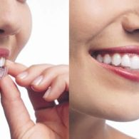cd-dental-braces-img3