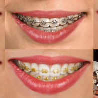 cd-dental-braces-img5
