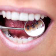 cd-dental-braces-img6