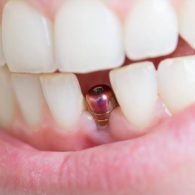 cd-dental-implants-img3
