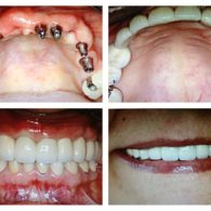 cd-dental-implants-img5