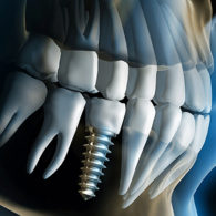 cd-dental-implants-img6