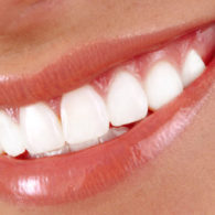 cd-teeth-whitening-img3