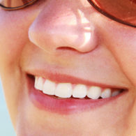cd-teeth-whitening-img4