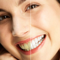 cd-teeth-whitening-img5