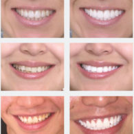 cd-teeth-whitening-img6