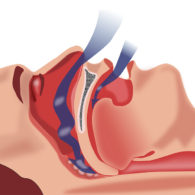 s-sleep-apnea-img3