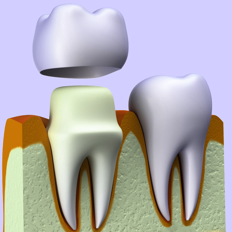 Tooth wear against ceramic crowns in posterior region a