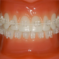 cd-dental-braces-img4