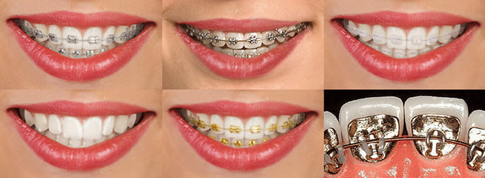 Dental Braces Front
