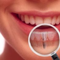 cd-dental-implants-img1