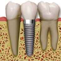cd-dental-implants-img2