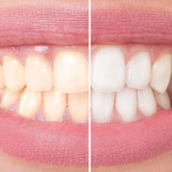 cd-teeth-whitening-img1