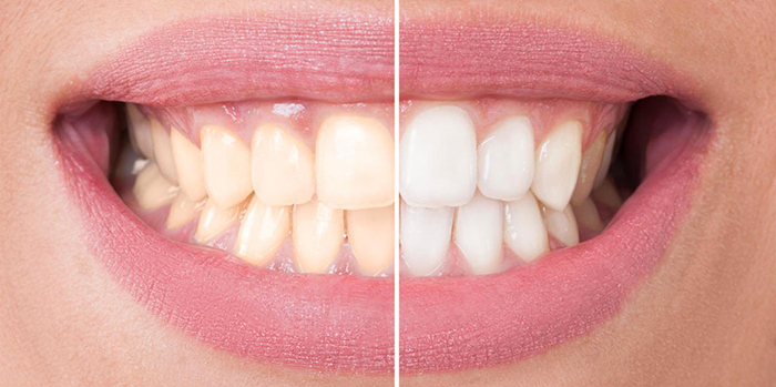 Teeth Whitening Yellow to white