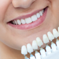 cd-teeth-whitening-img2