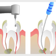 dt-dental-filling-img2