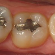 dt-dental-filling-img3