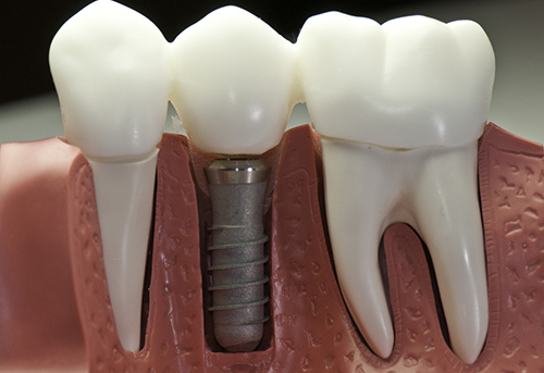 Zirconia Dental Implant